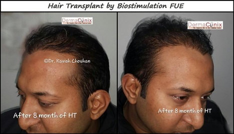 Best Hair Transplant Surgeons | DermaClinix - The Complete Skin & Hair Solution Center | Scoop.it