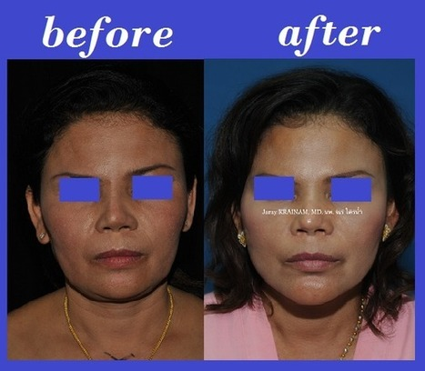 Facelift Photos Thailand | Bangkok Aesthetic Surgery Center | The Best Plastic Surgery Clinic In Bangkok Thailand | Scoop.it