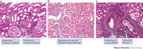 Scleroderma renal crisis and renal involvement in systemic sclerosis : Nature Reviews Nephrology : Nature Research | Rheumatology-Rhumatologie | Scoop.it
