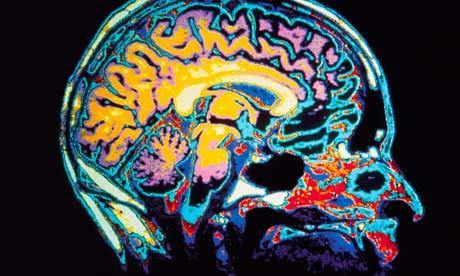 City living affects your brain, researchers find   Heal the world   Scoop.it