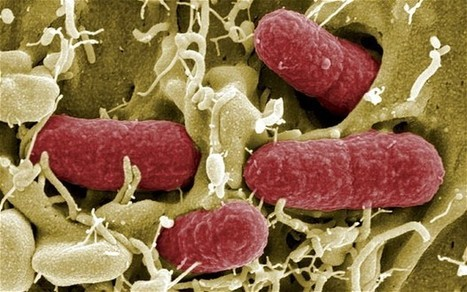 British superbug outbreak 'could kill 80,000' | Infectious Disease Prevention | Scoop.it