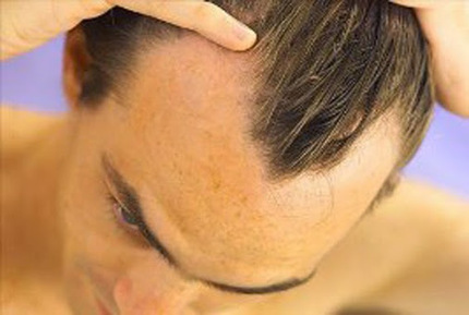 If you are thinning at the hairline or behind the back then you might be have… | hairtransplantdelhi.org | Scoop.it