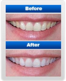 Teeth Whitening, Teeth Bleaching, Teeth Whitening Kits | Teeth Whitening | Scoop.it