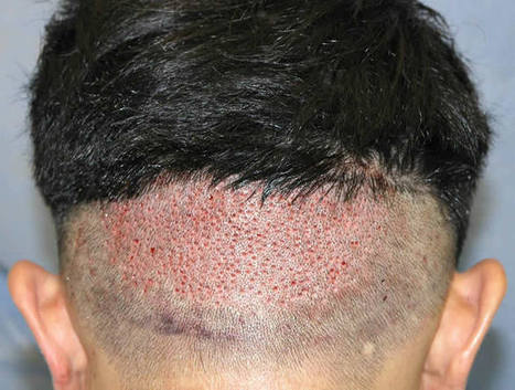 Most Successful Hair Treatment for Male Pattern Baldness   Royal Cosmetic Surgery   Scoop.it