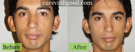 Vitiligo Treatment, Treatment Vitiligo, Natural Vitiligo Treatment | Vitiligo treatment | Scoop.it