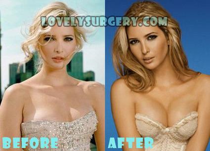 Ivanka Trump Plastic Surgery Nose Job and Boob Job | Celebrity Plastic Surgery | Scoop.it