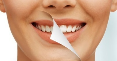 Greensborough Dentist shares effective ways of preventing a chipped tooth | Smile Creation Dental Clinic | Scoop.it