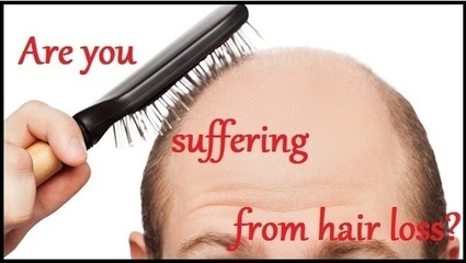 Are You a Victim of Male Hair Loss? | Prohair Clinic | Scoop.it