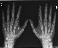 (Vidéo) Implants: La puce, futur du salarié sous surveillance?   Vous avez dit Innovation ?   Scoop.it