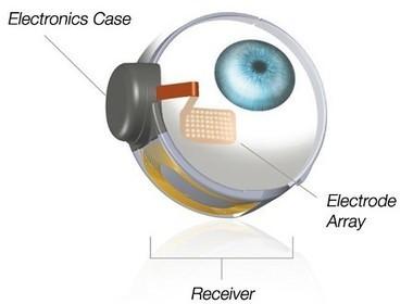 Une première dans l'implémentation de l'œil bionique | 16s3d: Bestioles, opinions & pétitions | Scoop.it