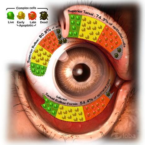 IOBA-InmunoLAB: detalle de obtención de muestras para diagnóstico de patologías oftalmológicas infecciosas / inmunes | Salud Visual (Profesional) 2.0 | Scoop.it