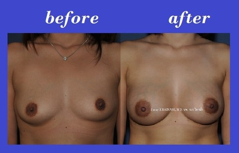 Bangkok Aesthetic Surgery Center: Cheapest Prices For Breast Augmentation In Thailand | Bangkok Aesthetic Surgery Center | Scoop.it