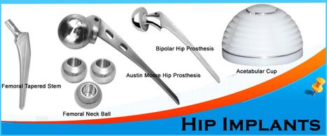 FAQs Related to Hip Implants | Orthopedic Implants | Orthopaedic Surgical Instruments | Orthopedic Plates & Screws | Scoop.it