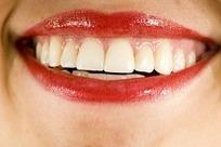 Prothèse dentaire amovible - Dentier   orthodontie   Scoop.it