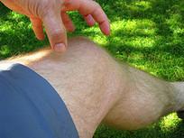 Relieve Knee Pain Naturally With Ayurveda Remedies | Ayurvedic Medicine | Scoop.it