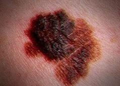Cáncer de piel: ¿cómo reconocer un melanoma maligno? | Salud Publica | Scoop.it