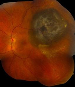 Mutation Linked to Less Risk of Spreading in Eye Melanomas | Melanoma Dispatch | Scoop.it