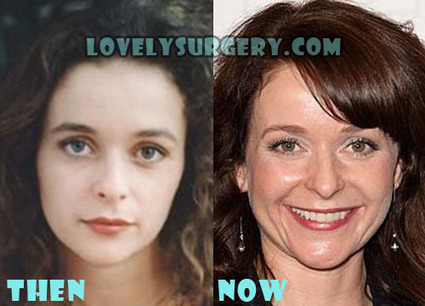 Julia Sawalha Plastic Surgery Before and After Photos | Celebrity Plastic Surgery | Scoop.it