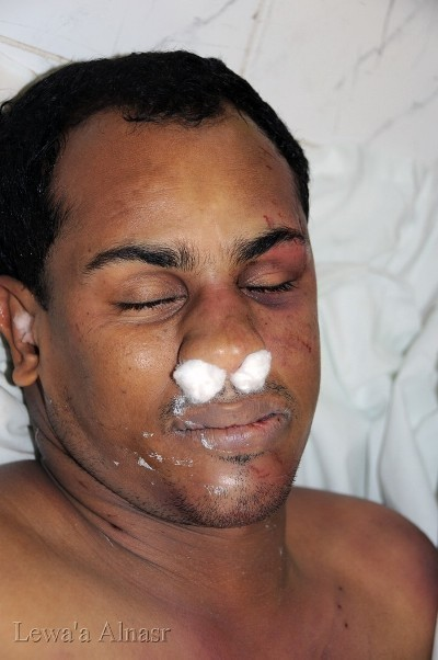 Bahrain: New Tragic Photos of Martyr Hani Abdul Aziz | Human Rights and the Will to be free | Scoop.it