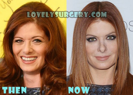 Debra Messing Plastic Surgery Before and After Pictures | Celebrity Plastic Surgery | Scoop.it