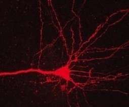 Lasers used to turn off cocaine addiction in rat brains, may translate into human therapy | Society Needs a Wake-up Call! | Scoop.it