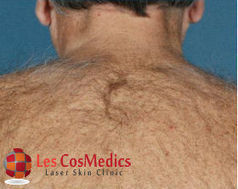 Unwanted Hair Removal by Laser | Les Cos Medics | Scoop.it