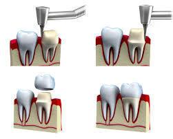 Dentist Reseda CA | Winnetka Dental | Scoop.it