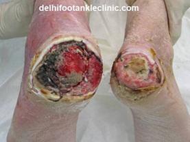 Diabetic Foot Treatment in India | Health | Scoop.it