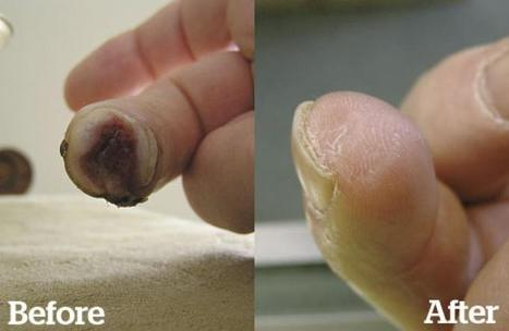 Stem Cell Powder Regrows Finger | leapmind | Scoop.it