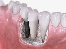 Dental linic in Noida: Teeth Implants India-A Noteworthy Innovation in Indian Dental Industry | Dental Care in Noida | Scoop.it