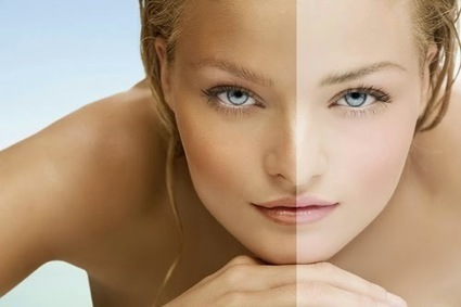 Advantages and Disadvantages of Laser Technology in Removing Dark Spots | Health Tips | Health Tips | Scoop.it