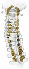 Get Advise & Medical Opinion for Your Affordable #SpinalFusionSurgery in #India | health and medicine | Scoop.it