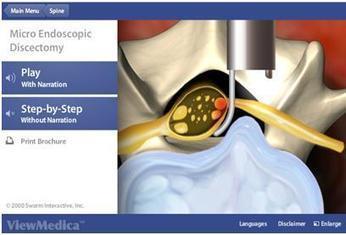 Lumbar Microdiscectomy Surgery in Tulsa | samedayspinesurgery | Scoop.it