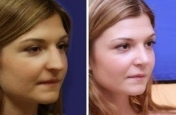 Why Is Rhinoplasty One Of The Most Popular Cosmetic Surgeries? | Jennifer Levine | Scoop.it
