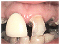 Successful Results for Patchogue Cosmetic Dentist- Dentists | Funny Is Fun | Scoop.it