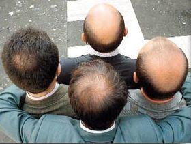 JIM - Faut-il explorer les coronaires des chauves ? | Mes ressources personnelles | Scoop.it