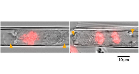 Tight spaces cause spreading cancer cells to divide improperly | Virology and Bioinformatics from Virology.ca | Scoop.it
