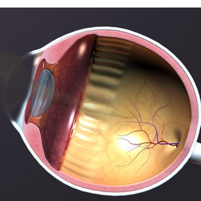 Chinese Study Demonstrates the Value of Orthokeratology in Children | Primary Eye Care Associates | Scoop.it