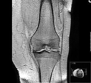 Osteoarthrosis Update in Diagnosis and Treatment | BlablaDoctor | Scoop.it