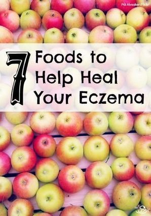 7 Foods to Help Heal Eczema From the Inside Out   The Stir   Allergies   Scoop.it