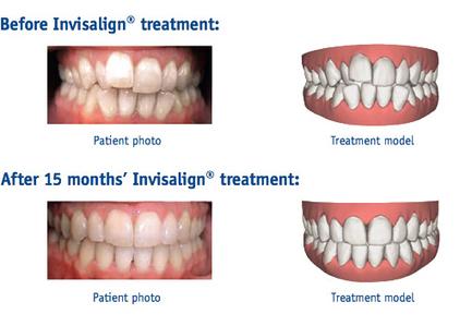 Portobello Dental Clinic offer Invisalign Braces in Dublin | Business and Services | Scoop.it