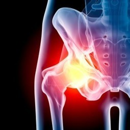 An Alternative to Hip Surgery or Hip Replacement Using Your Own Stem Cells - | MetroMD | Scoop.it