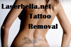 Get Rid Of Unwanted Tattoo With Laser Tattoo Removal Treatment-Laserbella | Laser Hair Removal | Scoop.it