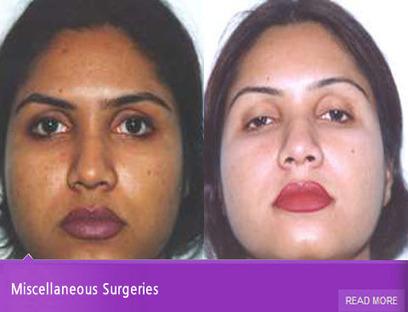 Plastic Surgery In Delhi: Know Your Priorities To Compar | Cosmeticsurgerydelhi | Scoop.it