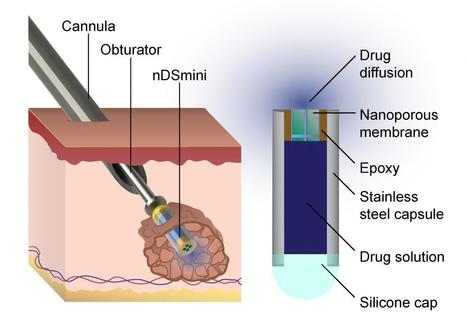 Implantable device targets cancer, other illnesses with controlled long-term drug delivery | KurzweilAI | Anti Aging Insights | Scoop.it