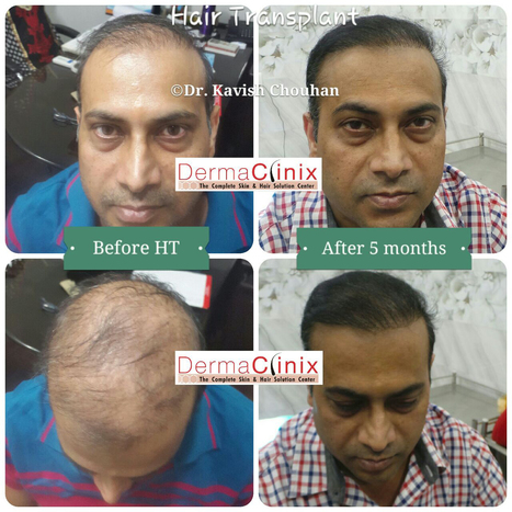Hair Transplant Delhi India, FUE Hair Transplant Clinic | DermaClinix - The Complete Skin & Hair Solution Center | Scoop.it