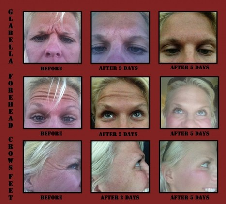 The Botox Chronicles – From Our Mother's Day Makeover Winner!!   Facial Plastic Surgeon Salt Lake City, Facelift - Browlift, Rhinoplasty, Utah Eyelid Surgery by Dr. Scott Thompson   Facial Plastics   Scoop.it