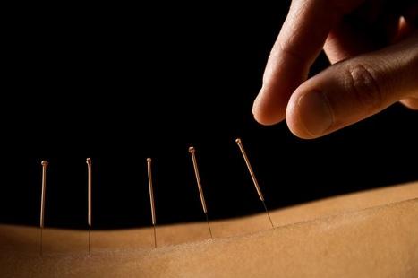 Acupuncture Libido | Acupuncture | Scoop.it