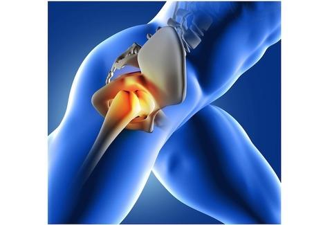 Stem Cells Could Replace Hip Replacements | Chair et Métal - L'Humanité augmentée | Scoop.it