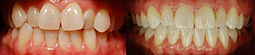 Braces For Teeth : Make Your Smile Confident | Dentistry Offers | Scoop.it